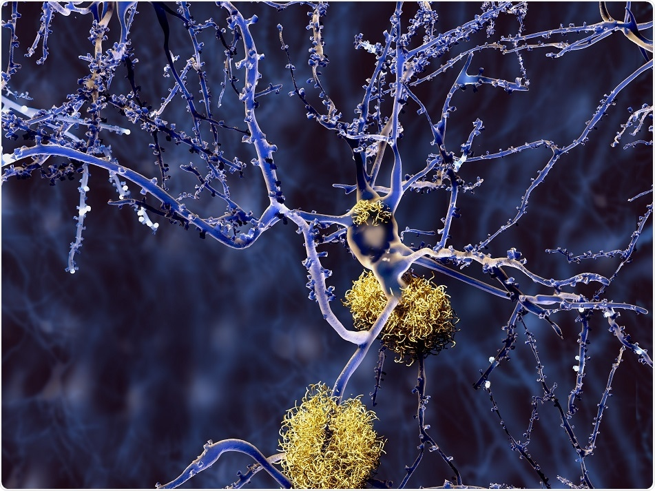Study finds link between increased brain glucose levels and Alzheimer's
